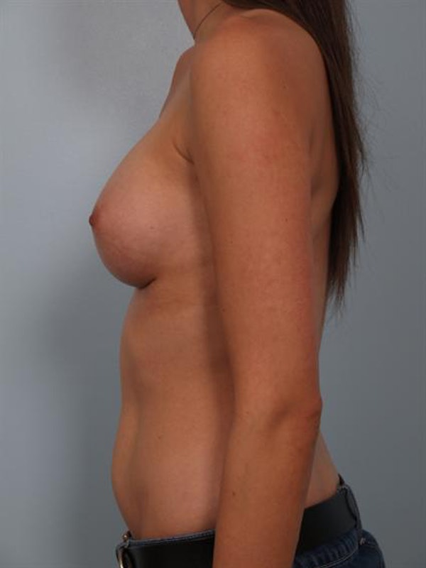 Breast Augmentation Gallery - Patient 1311004 - Image 4