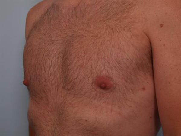 Male Breast/Areola Reduction Gallery - Patient 1311002 - Image 8