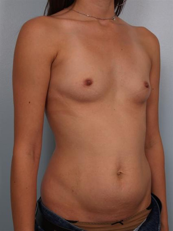 Breast Augmentation Gallery - Patient 1311004 - Image 5