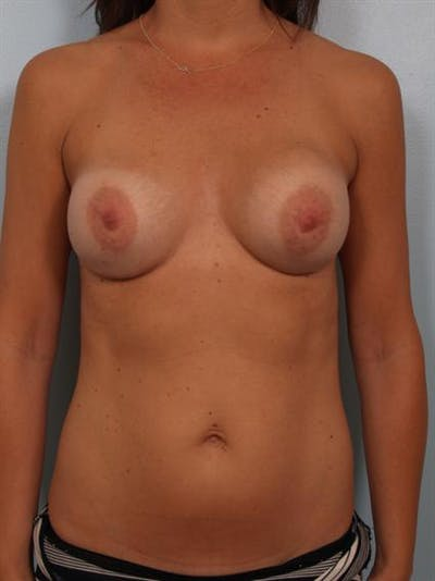 Breast Lift Gallery - Patient 1311006 - Image 1