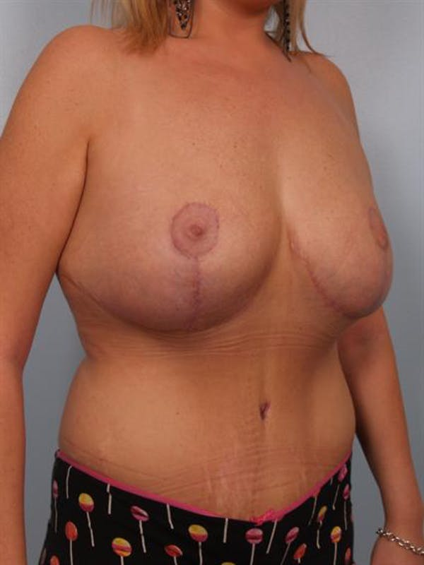 Tummy Tuck Gallery - Patient 1311005 - Image 4