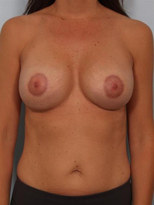 Breast Lift Gallery - Patient 1311006 - Image 2