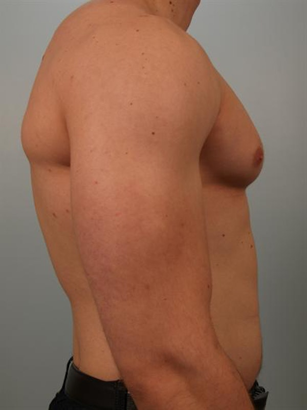 Male Breast/Areola Reduction Gallery - Patient 1311007 - Image 1