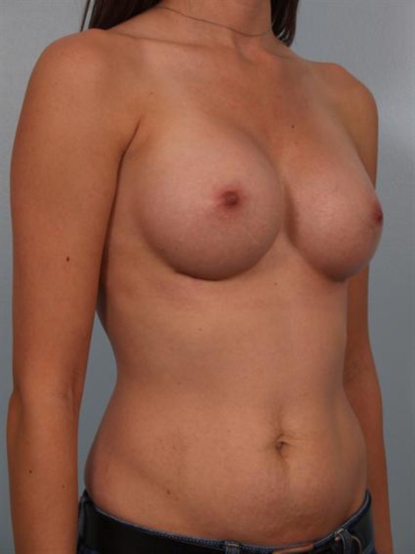 Breast Augmentation Gallery - Patient 1311004 - Image 6
