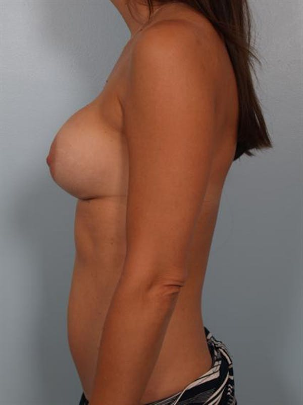 Breast Lift Gallery - Patient 1311006 - Image 3