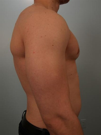 Male Breast/Areola Reduction Gallery - Patient 1311007 - Image 2