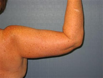 Power Assisted Liposuction Gallery - Patient 1311008 - Image 2