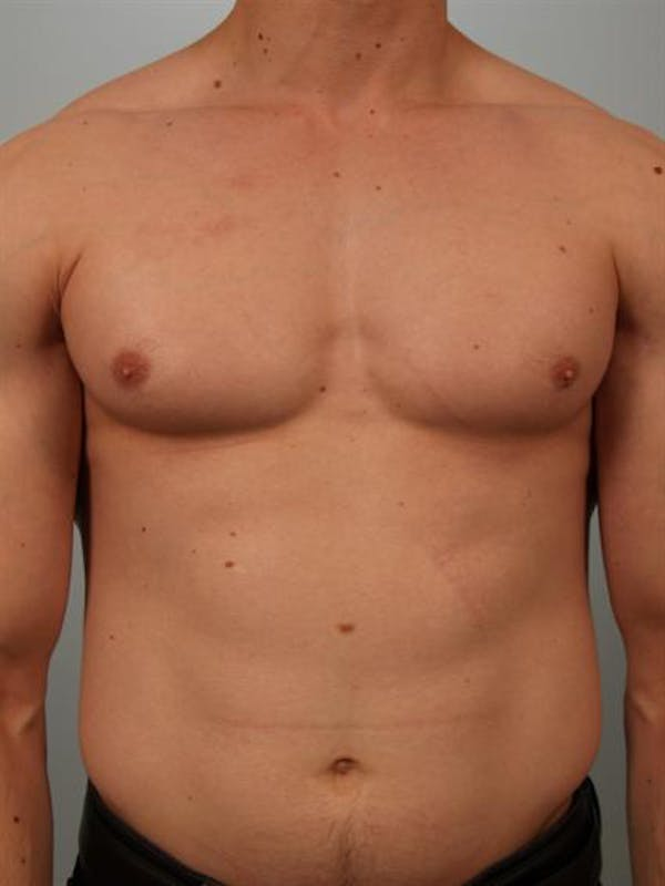 Male Breast/Areola Reduction Gallery - Patient 1311007 - Image 3