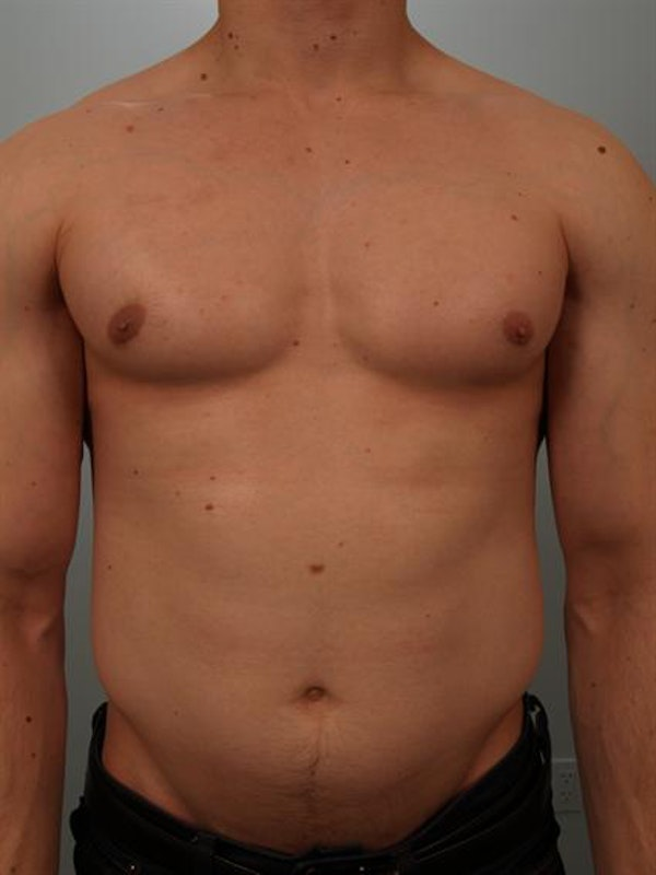 Male Breast/Areola Reduction Gallery - Patient 1311007 - Image 4