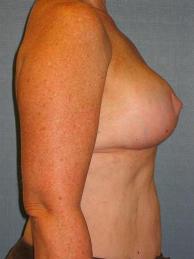 Power Assisted Liposuction Gallery - Patient 1311008 - Image 4