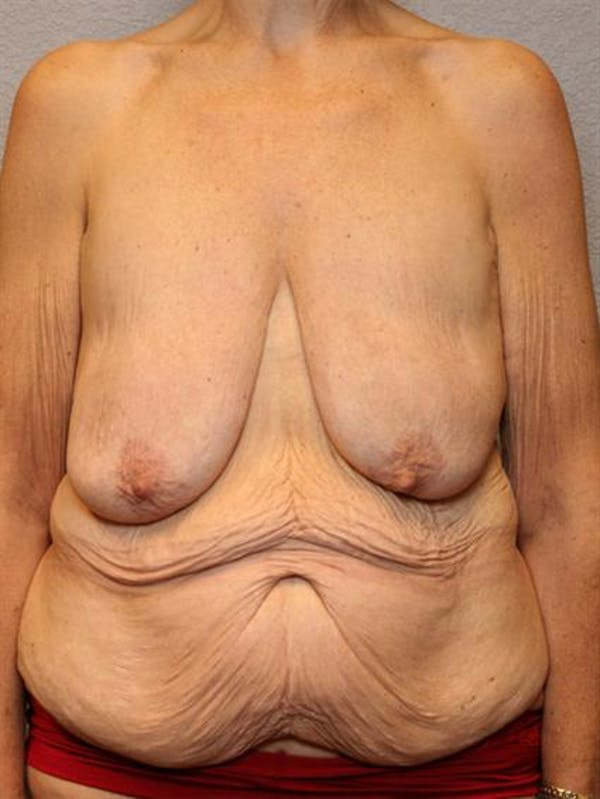 Breast Lift Gallery - Patient 1311011 - Image 1
