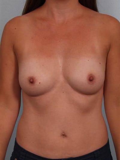 Breast Augmentation Gallery - Patient 1311012 - Image 1