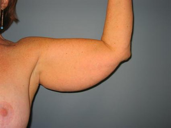 Power Assisted Liposuction Gallery - Patient 1311008 - Image 5
