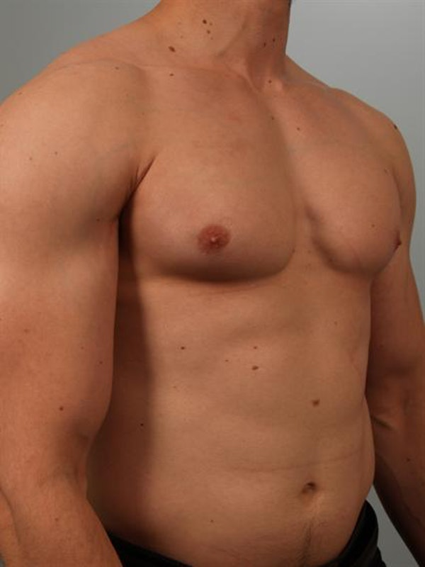 Male Breast/Areola Reduction Gallery - Patient 1311007 - Image 5