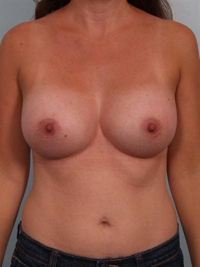Breast Augmentation Gallery - Patient 1311012 - Image 2