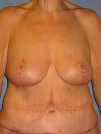 Breast Lift Gallery - Patient 1311011 - Image 2