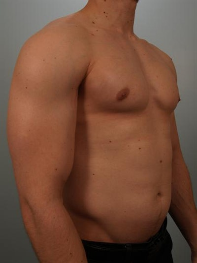 Male Breast/Areola Reduction Gallery - Patient 1311007 - Image 6