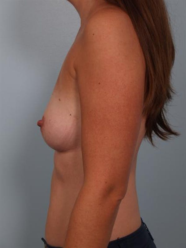 Breast Augmentation Gallery - Patient 1311012 - Image 3