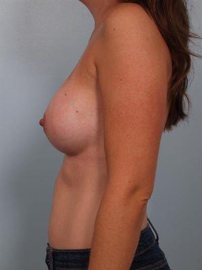 Breast Augmentation Gallery - Patient 1311012 - Image 4