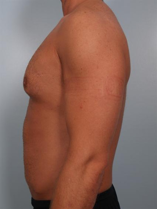 Male Breast/Areola Reduction Gallery - Patient 1311013 - Image 1