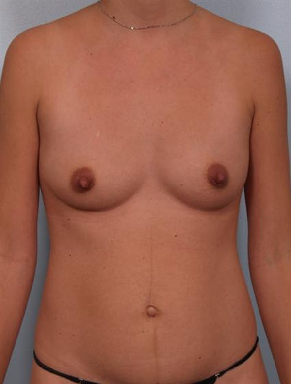 Tummy Tuck Gallery - Patient 1311010 - Image 5