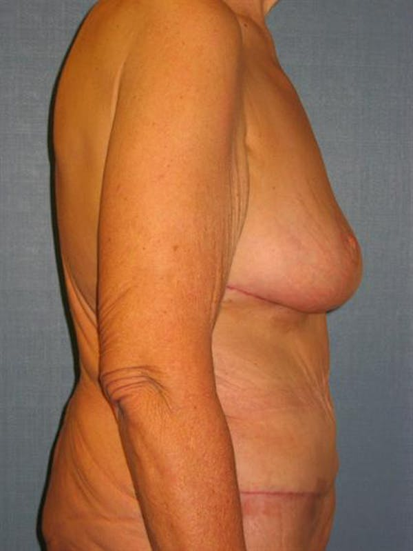 Breast Lift Gallery - Patient 1311011 - Image 4