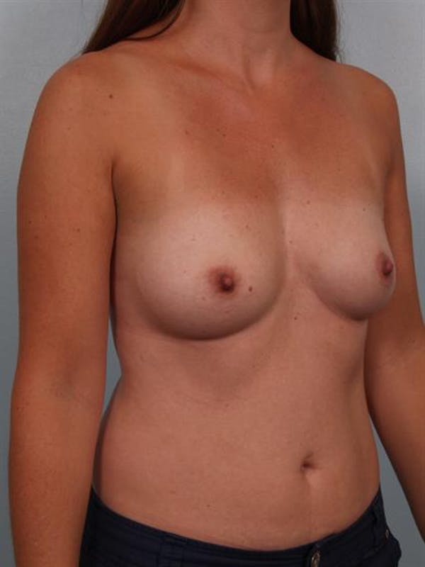Breast Augmentation Gallery - Patient 1311012 - Image 5
