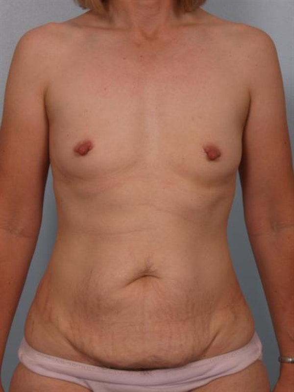 Power Assisted Liposuction Gallery - Patient 1311014 - Image 1