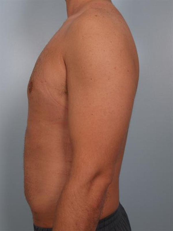 Male Breast/Areola Reduction Gallery - Patient 1311013 - Image 2