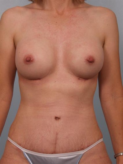 Power Assisted Liposuction Gallery - Patient 1311014 - Image 2