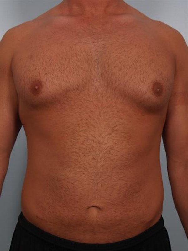 Male Breast/Areola Reduction Gallery - Patient 1311013 - Image 3