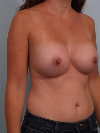 Breast Augmentation Gallery - Patient 1311012 - Image 6