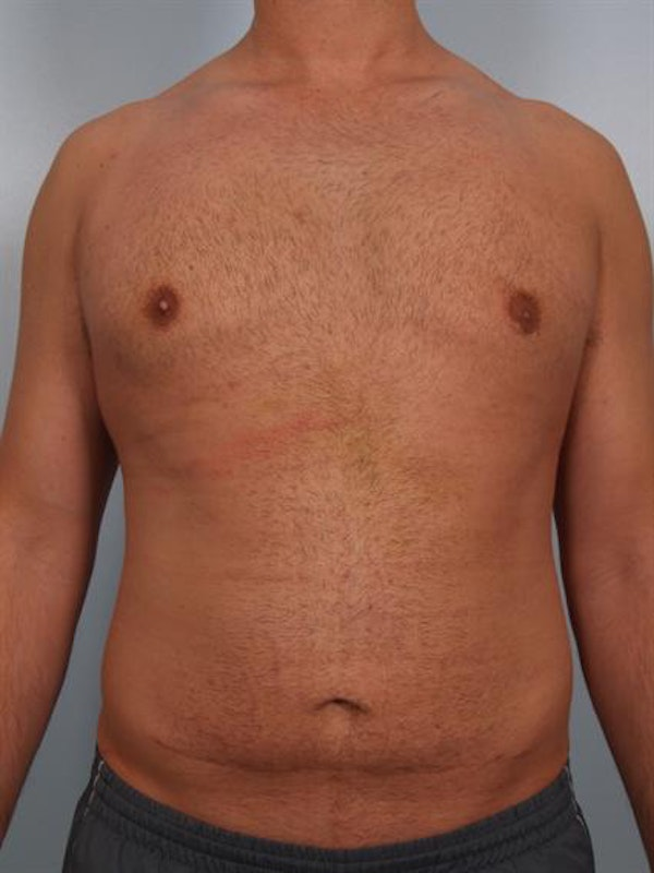 Male Breast/Areola Reduction Gallery - Patient 1311013 - Image 4