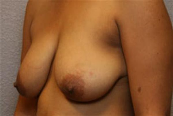 Breast Lift Gallery - Patient 1311016 - Image 3
