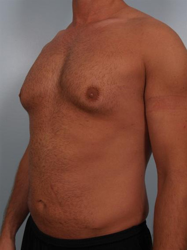 Male Breast/Areola Reduction Gallery - Patient 1311013 - Image 5