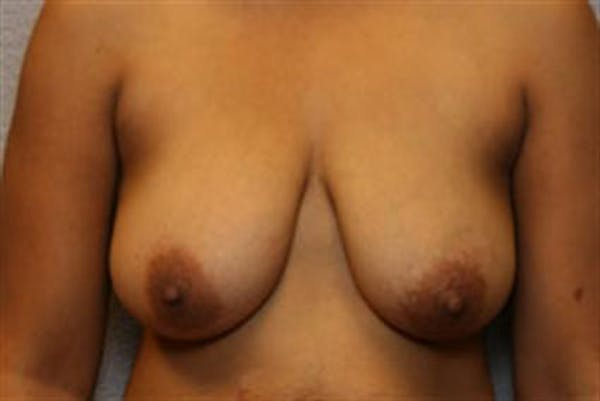 Breast Lift Gallery - Patient 1311016 - Image 1