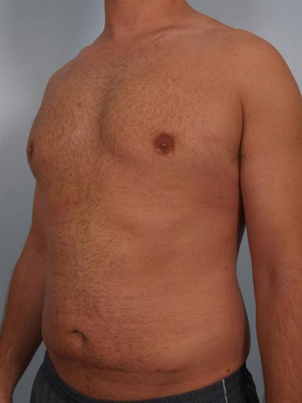 Male Breast/Areola Reduction Gallery - Patient 1311013 - Image 6