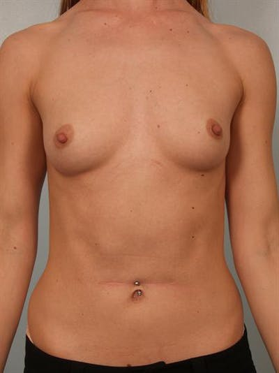 Breast Augmentation Gallery - Patient 1311017 - Image 1