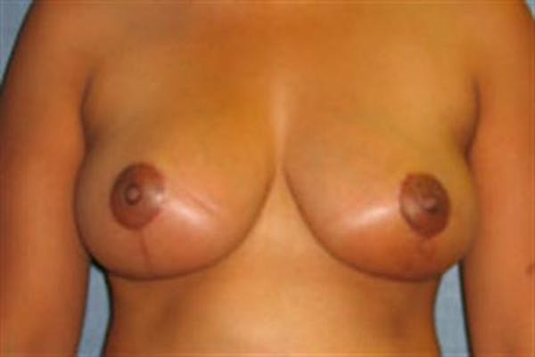 Breast Lift Gallery - Patient 1311016 - Image 2
