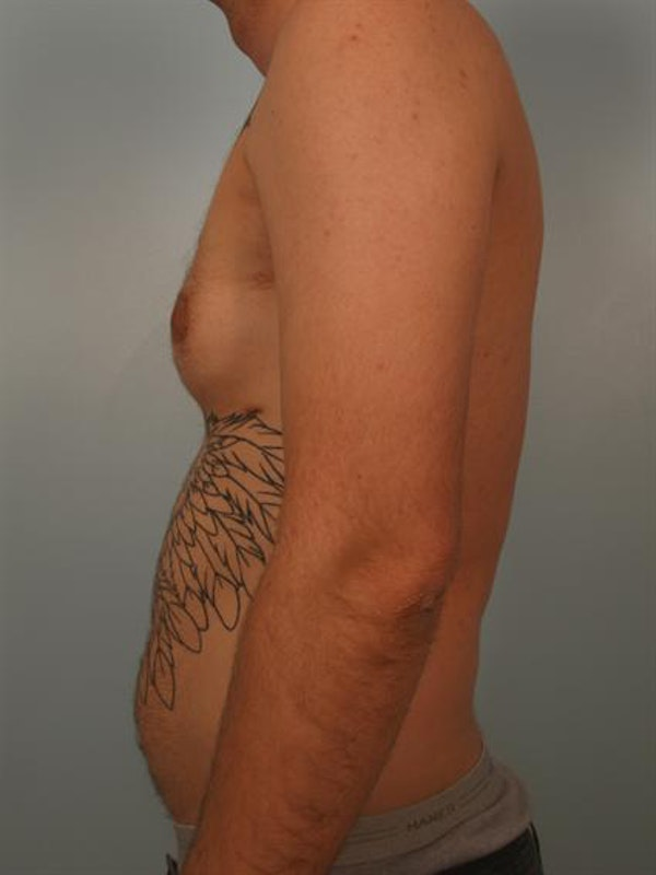 Male Breast/Areola Reduction Gallery - Patient 1311018 - Image 1