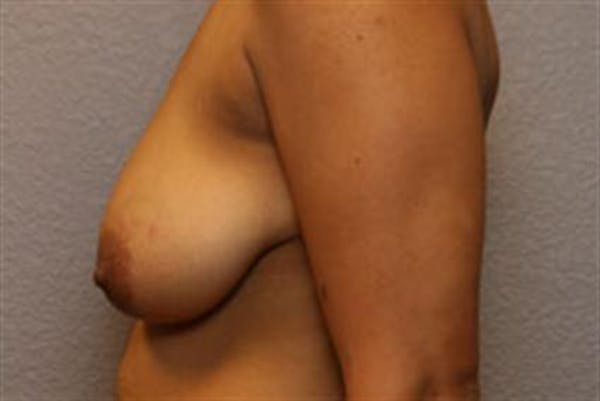 Breast Lift Gallery - Patient 1311016 - Image 5