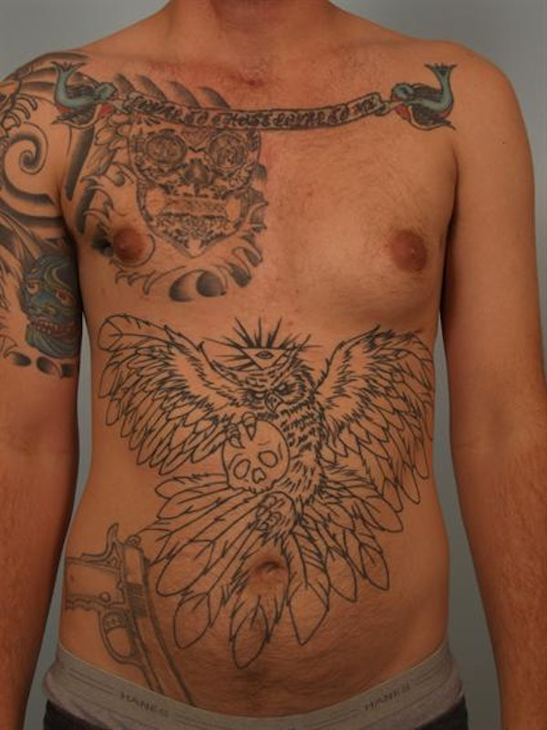 Male Breast/Areola Reduction Gallery - Patient 1311018 - Image 3