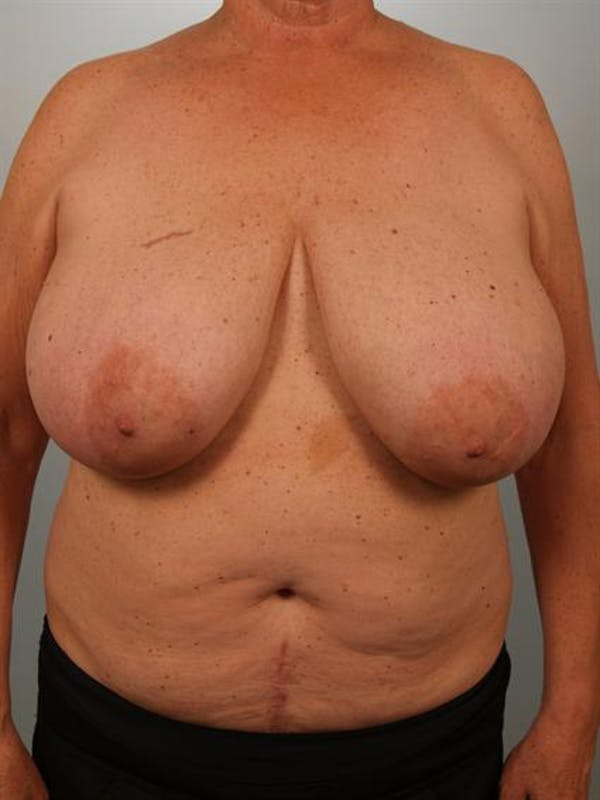 Power Assisted Liposuction Gallery - Patient 1311019 - Image 3