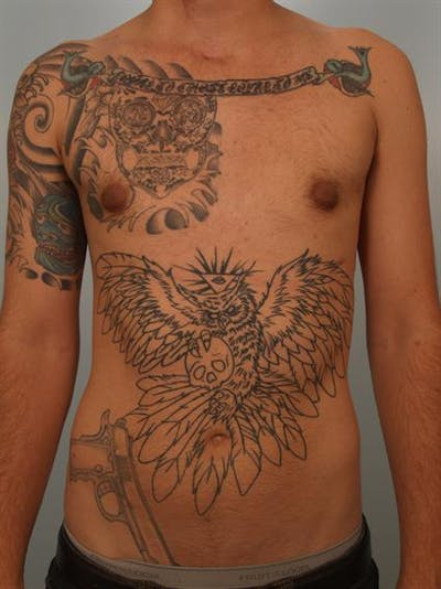 Male Breast/Areola Reduction Gallery - Patient 1311018 - Image 4