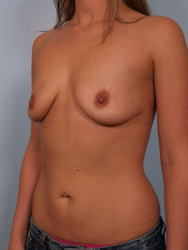 Breast Lift Gallery - Patient 1311021 - Image 3