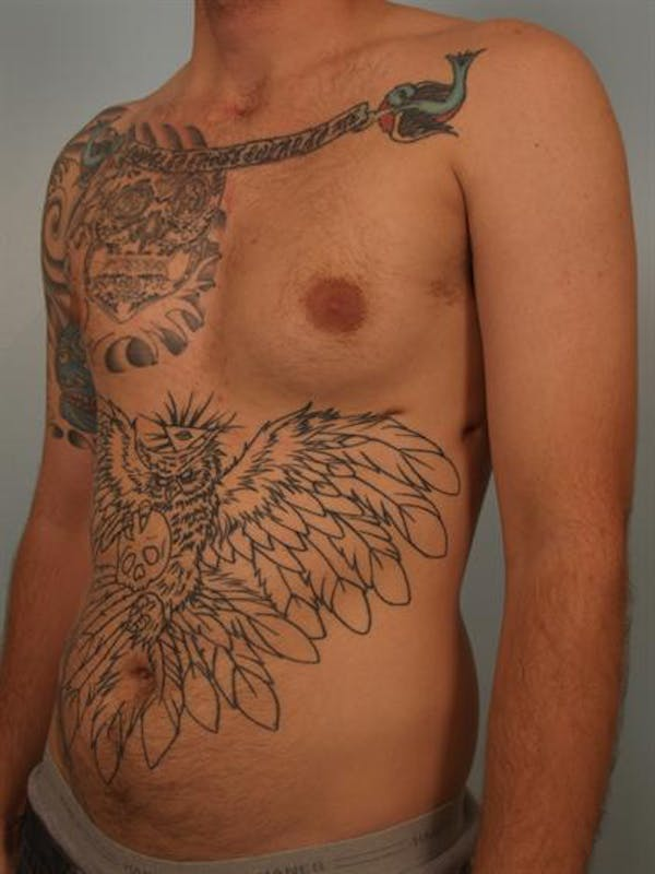 Male Breast/Areola Reduction Gallery - Patient 1311018 - Image 5