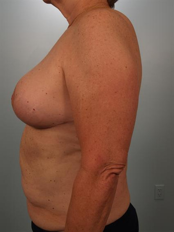 Power Assisted Liposuction Gallery - Patient 1311019 - Image 6
