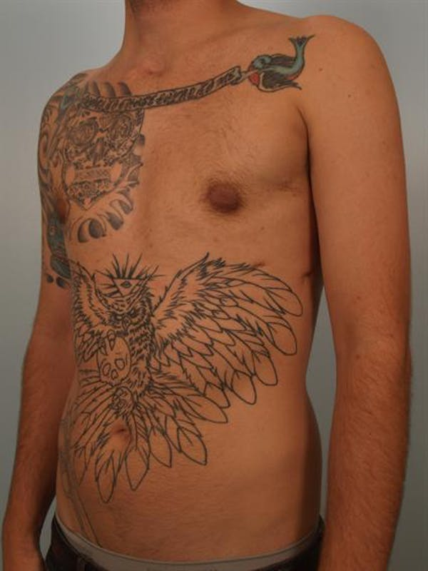 Male Breast/Areola Reduction Gallery - Patient 1311018 - Image 6
