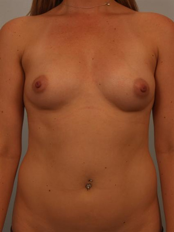 Breast Augmentation Gallery - Patient 1311026 - Image 1