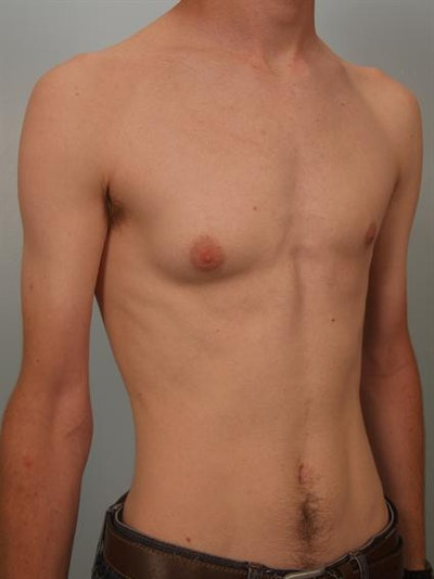 Male Breast/Areola Reduction Gallery - Patient 1311023 - Image 1